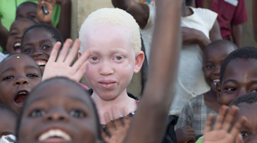 The Killings of Albinos in South Africa with Kuli Roberts